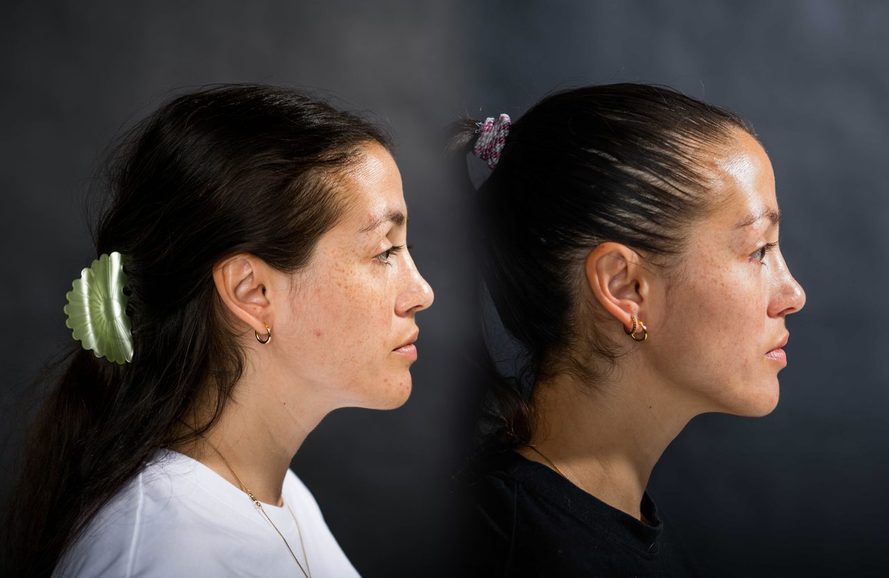 Flash photography, Forehead, Hair, Nose, Head, Eyebrow, Eyelash, Ear, Neck, Jaw